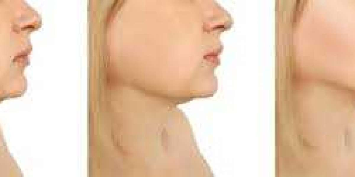 Get your chin fat removed by kybella treatment.