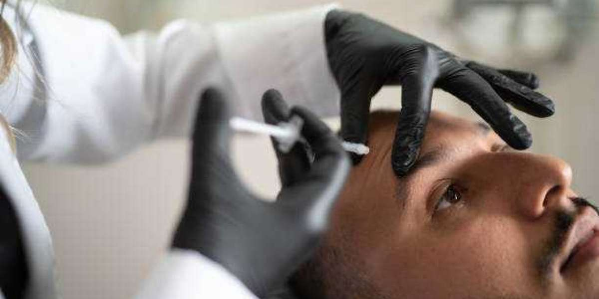 What is the Procedure When Going for an FUE Hair Transplant, its Costs, and Benefits?